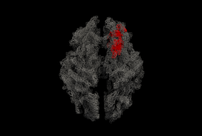 "<span class=""caption"">White matter map of the brain (ray traced rendering), with the area correlated with spontaneity in red.</span> <span class=""attribution""><span class=""source"">Parashkev Nachev</span>, <span class=""license"">Author provided</span></span>"
