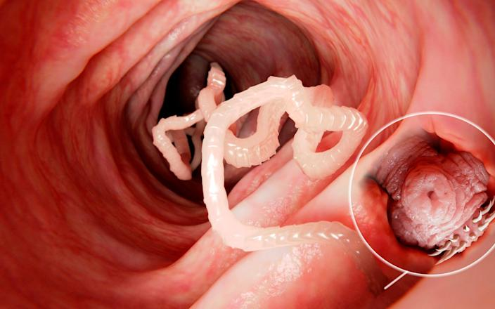 Illustration of a tapeworm in a human intestine.  - JUAN GAERTNER/SCIENCE PHOTO LIBRARY