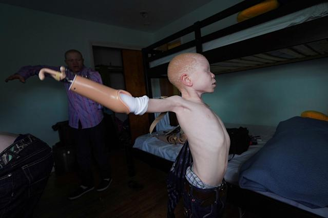 <p>Baraka Lusambo, 7, a Tanzanian with albinism who had an arm chopped off in a witchcraft-driven attack, puts on his prosthetic arm at the Global Medical Relief Fund house in the Staten Island borough of New York City, June 3, 2017. (Photo: Carlo Allegri/Reuters) </p>