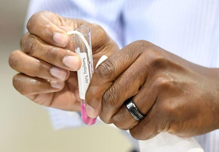 Clark County Commissioner Lawrence Weekly puts a cotton swab in a sampling tube as he takes a coronavirus (COVID-19) test during a preview of a new COVID-19 testing site inside Cashman Center on August 3, 2020 in Las Vegas, Nevada.. (Photo by Ethan Miller/Getty Images)