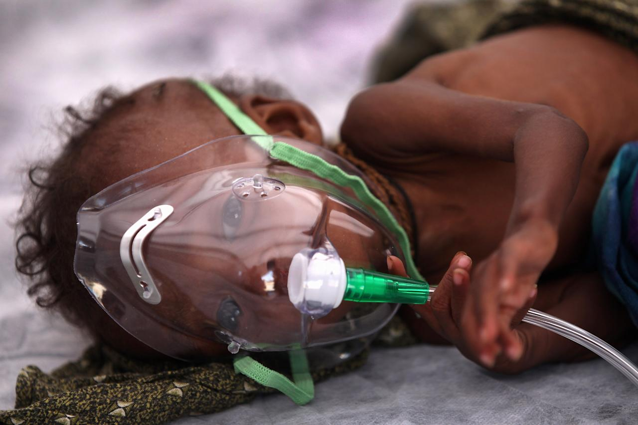 MOGADISHU, SOMALIA - AUGUST 19:  A young malnourished girl breathes in oxygen at a Turkish field hospital on August 19, 2011 in Mogadishu, Somalia. The tented hospital, opened this week by the Turkish Ministry of Health, is located next to a large camp for Somalis displaced by famine and drought. Some 100,000 Somalis have fled famine conditions in the countryside to Mogadishu in the last three months, according to the UN, setting up makeshift shelters in camps throughout the capital.  (Photo by John Moore/Getty Images)