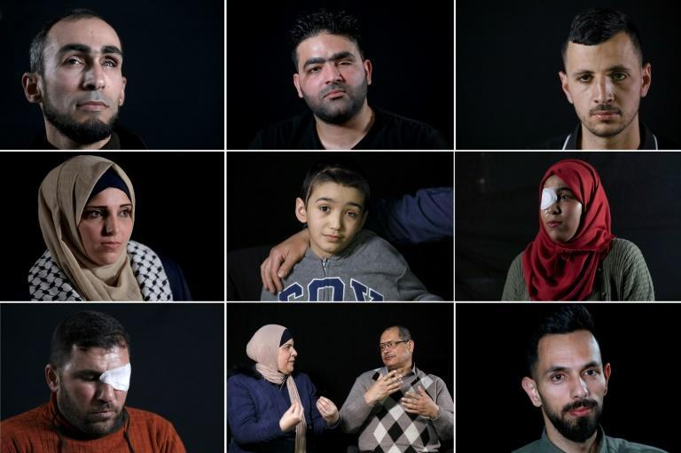 AFP met with Palestinians who lost an eye after being shot by the Israeli army, in Gaza, Jerusalem or the West Bank (AFP Photo/Emmanuel DUNAND)