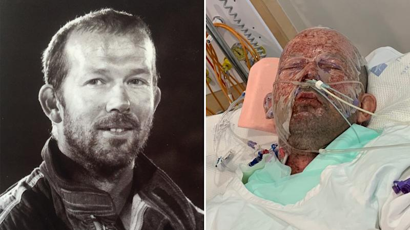 Des Woods is recovering from burns after his vehicle exploded.
