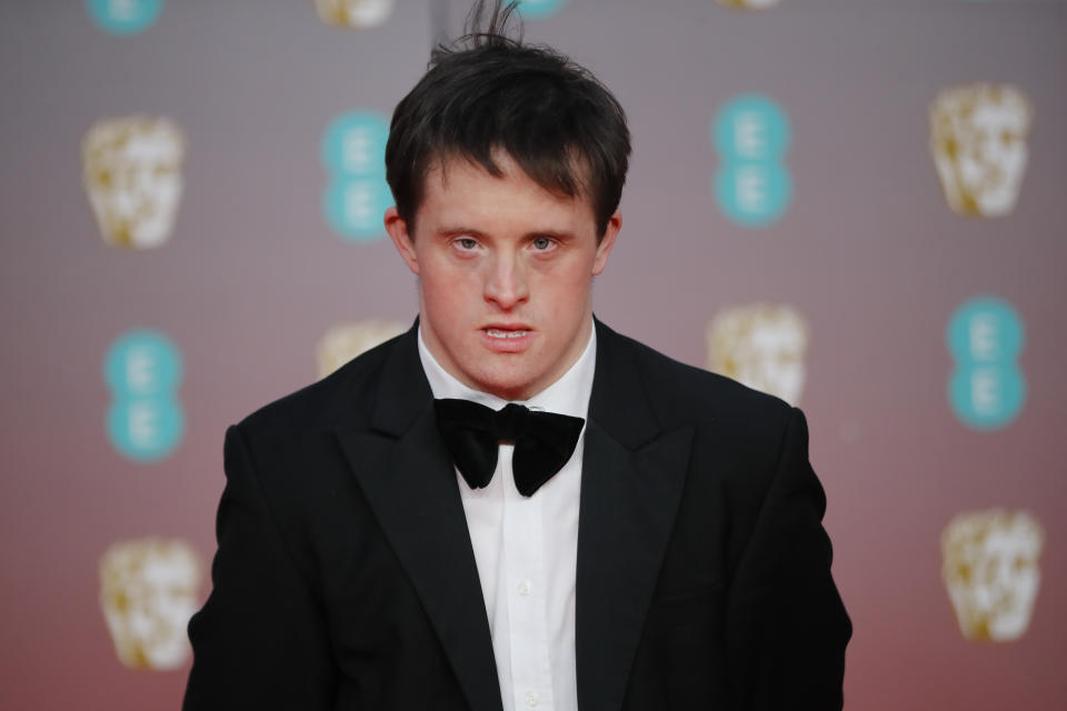 British actor Tommy Jessop poses on the red carpet upon arrival at the BAFTA British Academy Film Awards at the Royal Albert Hall in London on February 2, 2020. (Photo by Tolga AKMEN / AFP) (Photo by TOLGA AKMEN/AFP via Getty Images)