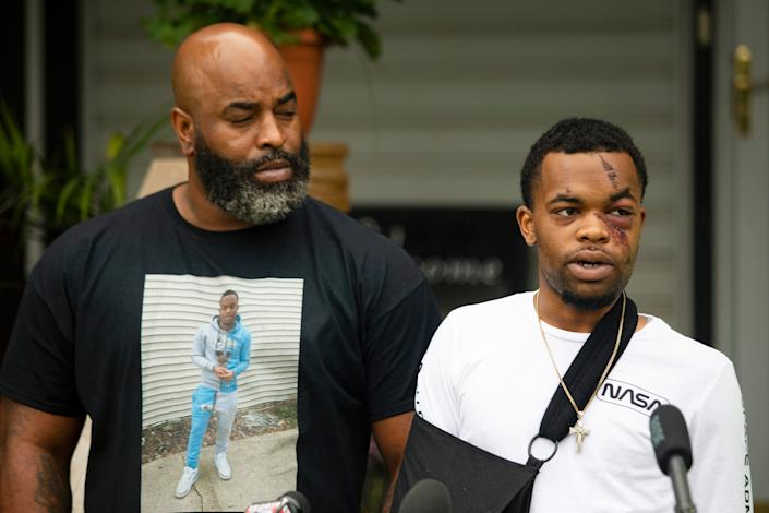 DarQuan Jones speaks at a news conference next to his father, Daryl Jones Jr., in Des Moines, Iowa. Jones, 22, was assaulted by white men May 16 in a racially motivated attack, resulting in five facial fractures and a broken wrist. Jones said there was an attempt to drown him in a nearby creek, and at least one perpetrator repeatedly used racial slurs. As of Friday, June 19, 2020,, one suspect has been arrested and one additional warrant issued for arrest.