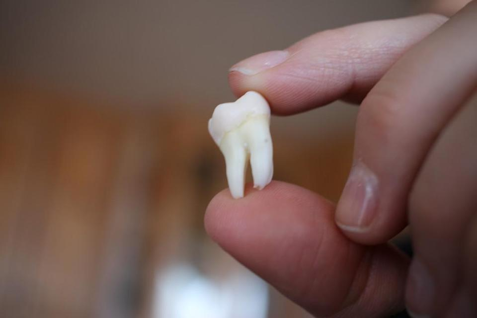 Knock out a permanent or adult tooth