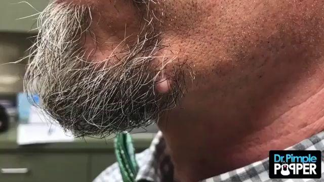 Dr Pimple Popper See The Giant Whitehead Explode From