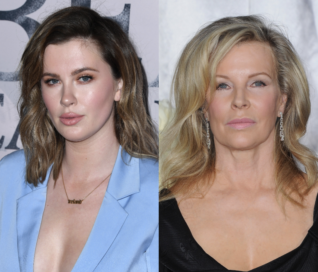 Ireland Baldwin faces criticism from her mom Kim Basinger over recent Instagram photo: (Photo: Getty Images)
