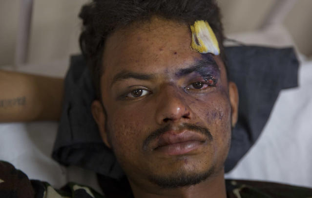 <p>Indian Dalit man Sachin kumar, 21, who was attacked by a group of people while returning from a rally, recovers at a government hospital in Meerut, about 65 kilometers from New Delhi, India, May 24, 2017. (Photo: Manish Swarup/AP) </p>