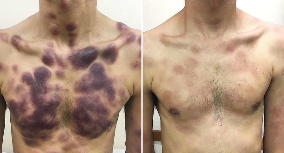 A man is pictured with skin lesions caused by a rare form of cancer.