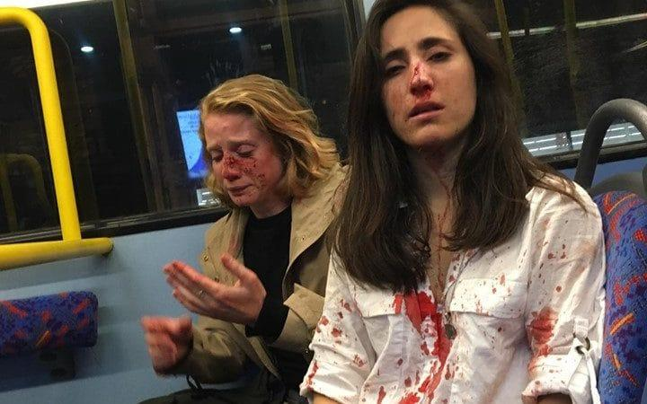 Melania Geymonat (right) and her girlfriend Chris after they were assaulted by a gang of men on a night bus in Camden. Scotland Yard are investigating what they are calling a homophobic attack - Melania Geymonat/Facebook