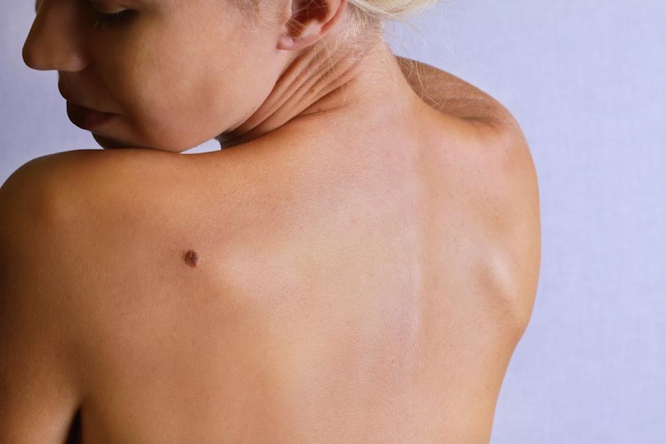 Young woman looking at birthmark on her back, skin. Checking benign moles.