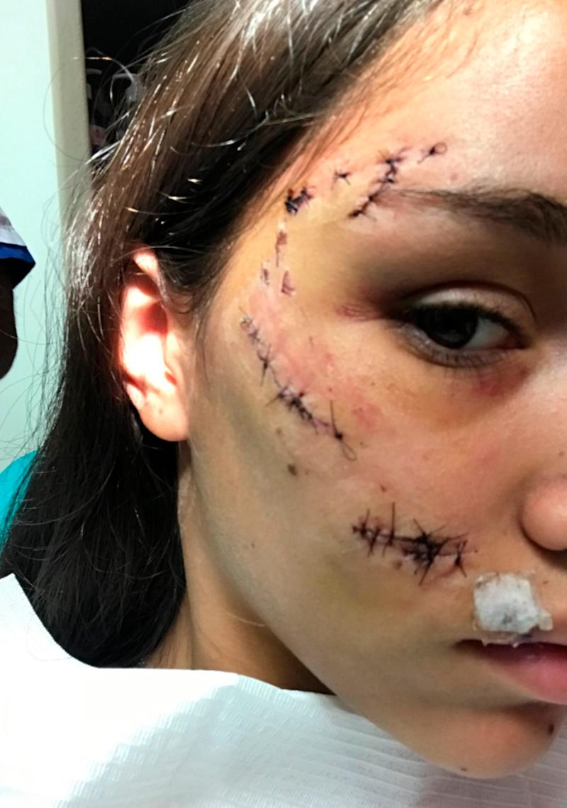 The 17-year-old, from Argentina, is seen with stitches stretching from her forehead to upper lip. Source: Australscope