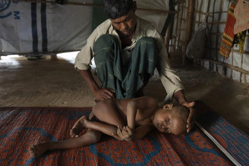Mohammed Amin cares for his sick son, 7-year-old Mujibur Rahman, in a hut. The boy suffers from a nervous system disorder, his father said. | James Nachtwey for TIME