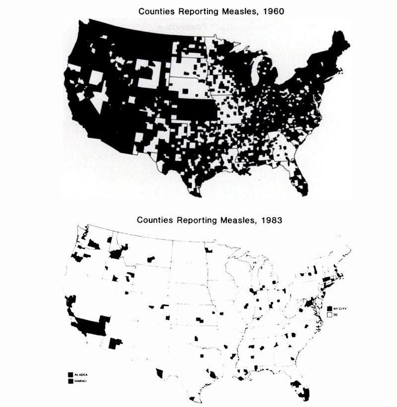 measles map