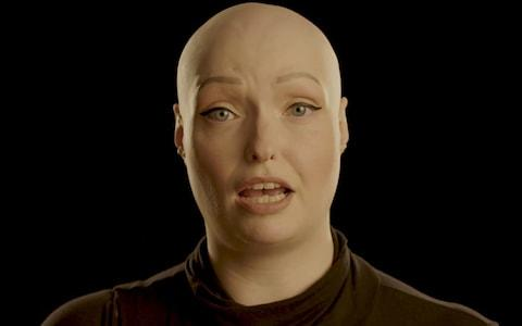 Brenda Finn, who has alopecia - Credit: Changing Faces/Changing Faces