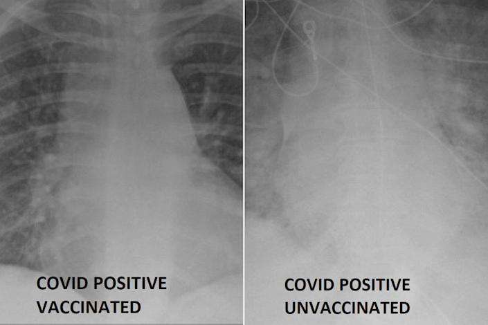 COVID-19 lung x-rays show difference getting the vaccine can make