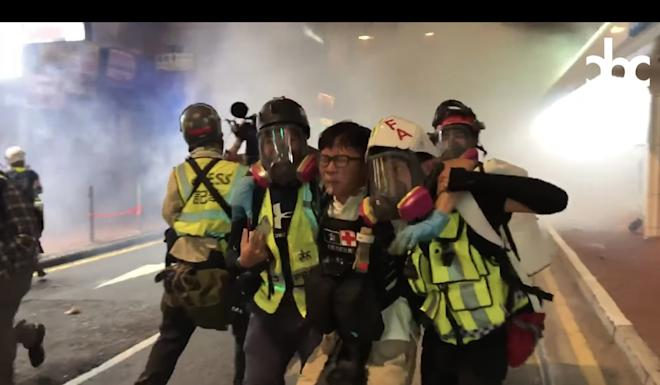 A student first-aider suffered serious burn injuries after being hit by a tear-gas canister. Photo: Handout from City Broadcasting Channel