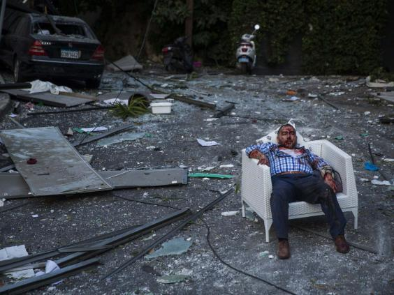 An injured man rests in a chair (Getty Images)