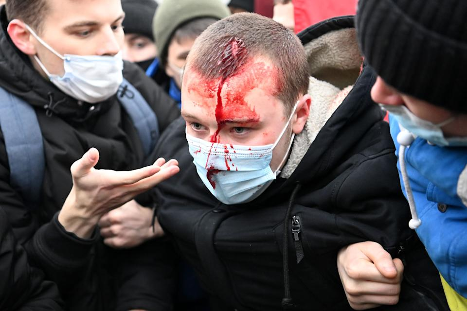 <p>An injured man is helped by other protesters during a rally in support of jailed opposition leader Alexei Navalny in downtown Moscow </p> (AFP via Getty)