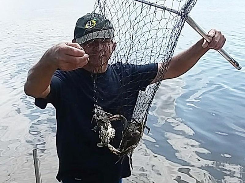 Father Who Contracted Flesh-Eating Bacteria from Crabbing Has Now Had Both Arms Amputated