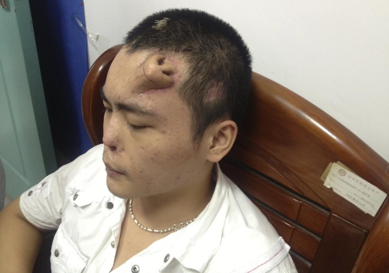 A new nose, grown by surgeons on Xiaolian's forehead, is pictured before being transplanted to replace the original nose, which is infected and deformed, at a hospital in Fuzhou, Fujian province September 24, 2013. Xiaolian, 22, neglected his nasal trauma following a traffic accident on August, 2012. After several months, the infection had corroded the cartilage of the nose, making it impossible for surgeons to fix it leaving no alternative but to grow a new nose for replacement. The new nose is grown by placing a skin tissue expander onto Xiaolian's forehead, cutting it into the shape of a nose and planting a cartilage taken from his ribs. The surgeons said that the new nose is in good shape and the transplant surgery could be performed soon, local media reported. Picture taken September 24, 2013. REUTERS/Stringer (CHINA - Tags: SOCIETY HEALTH DISASTER TPX IMAGES OF THE DAY) CHINA OUT. NO COMMERCIAL OR EDITORIAL SALES IN CHINA