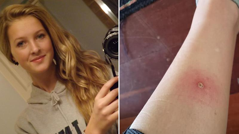 Canadian backpacker Alyssa Cassidy (left) shared photos of an apparent spider bite, pictured right.