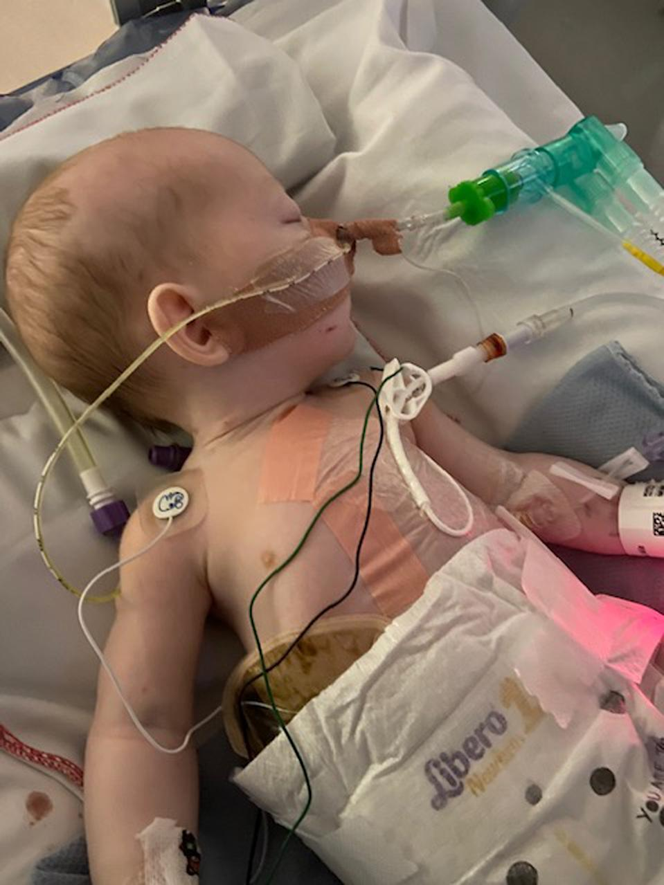 Baby Elliot was born with his internal organs outside his body. (PA Real Life/Collect)