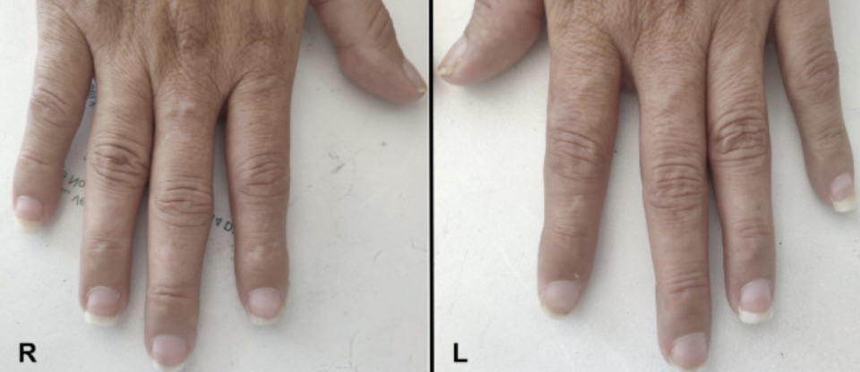 The hand's of a 48-year-old woman with half-and-half nails are pictured.