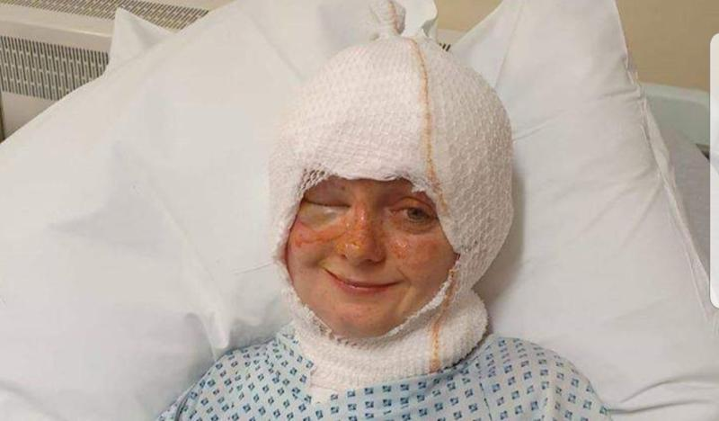 Emily was treated for second and third degree burns to her face, neck and head. (SWNS)