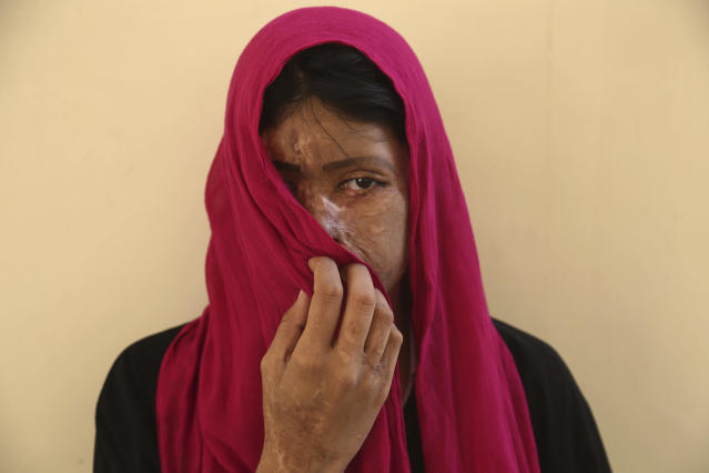 <p>Acid attack survivor Sana Naz poses for a photo during a gathering at an NGO office ahead of International Women's Day in Karachi, Pakistan, Wednesday, March 8, 2017. (Photo: Shakil Adil/AP) </p>