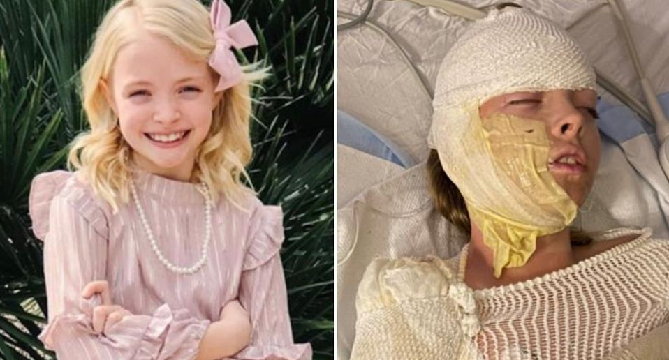 Isla Cook is pictured left. On the right is a photo of her covered in bandages in a hospital bed after a gas tank caught fire in Arizona.