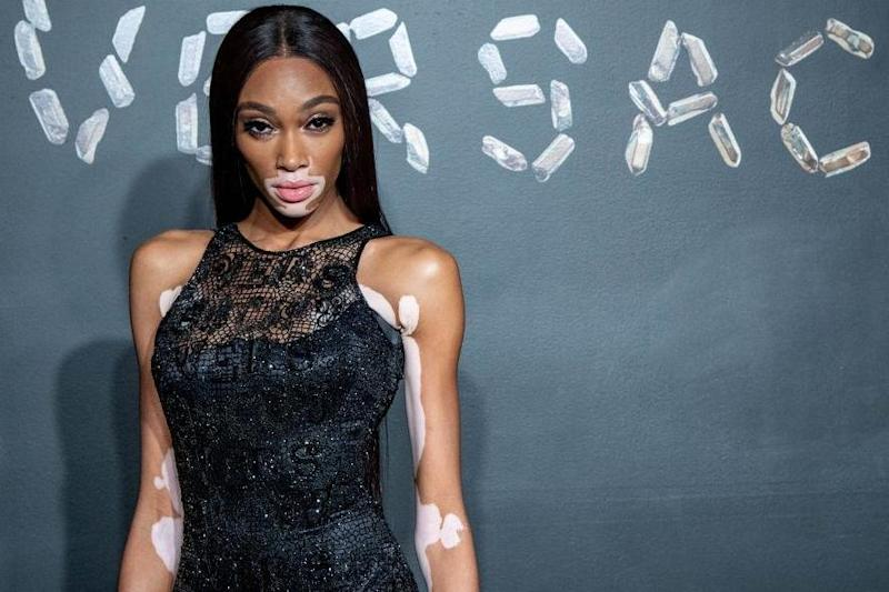 What is vitiligo? The rare skin condition explained