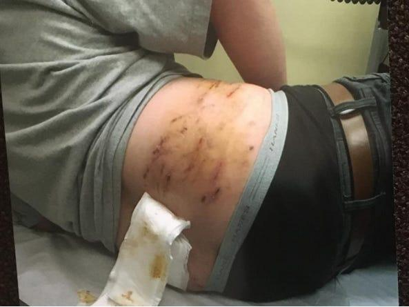 A photo of Raymond Rubio's injuries from a January 2020 arrest by Visalia police.