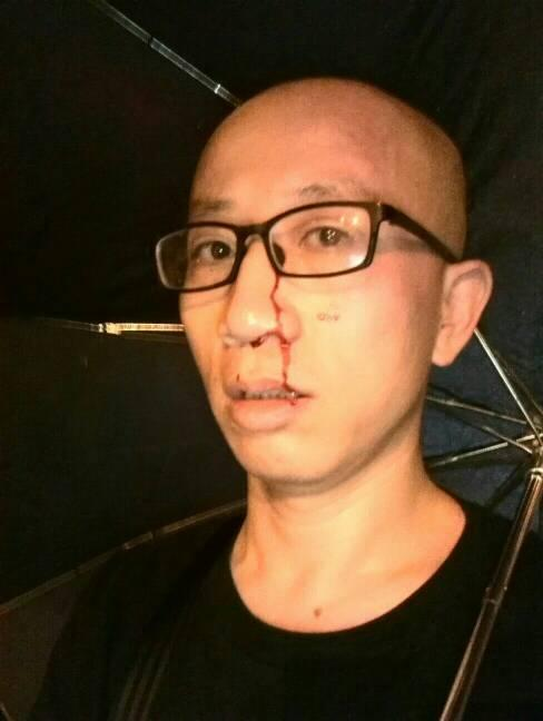 I remember clearly, a top guy wearing black clothes kicked my abdomen. They were very professional, caught my throat and hit my eye. Prominent Chinese activists Hu Jia was attacked last night on July 16 in Beijing. He reported the incident in his Twitter. Chinese Activist Hu Jia Attacked
