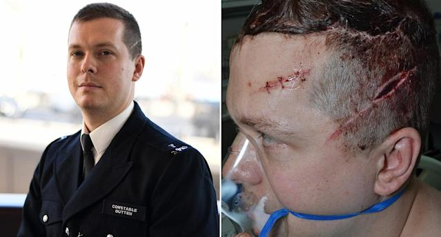 PC Stuart Outten suffered blows to the head from a machete. (PA Images)