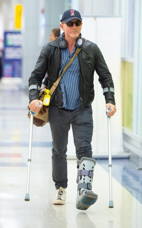 Craig on crutches in New York in June - Credit: thelmagedirect.com