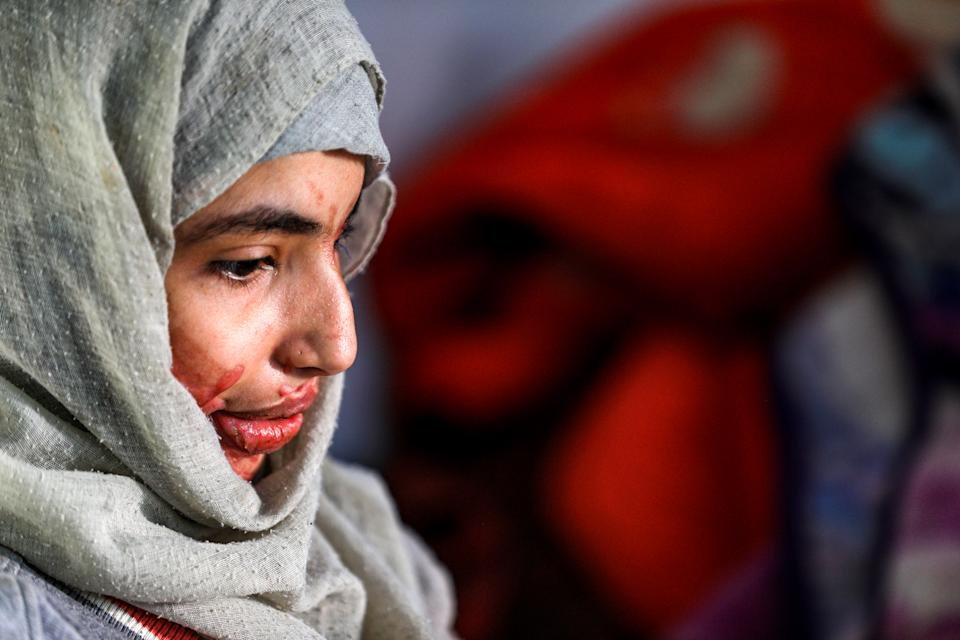 EDITORS NOTE: Graphic content / Al-Anoud Hussain Sheryan, a 19-year-old girl disfigured in an acid attack by her abusive husband, sits at a hospital where she is undergoing treatment in Yemen's capital Sanaa on January 28, 2021. - Married at the age of 12, rejected at 16, and then disfigured in an acid attack, Sheryan's fate is a shocking illustration of abuse in a society beset by war and poverty. Now aged 19, the young Yemeni woman agreed to relate her ordeal at the hands of her abusive husband -- rare testimony in a country where domestic violence is largely hidden. (Photo by Mohammed HUWAIS / AFP) (Photo by MOHAMMED HUWAIS/AFP via Getty Images)