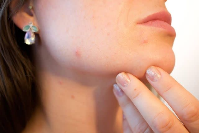 What Does The Thyroid Gland Really Do?