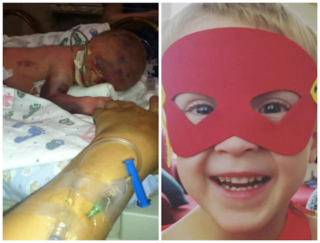 Emmett was born at 32 weeks gestation, weighing just 4 pounds. The 4-year-old now loves superhero capes and masks.