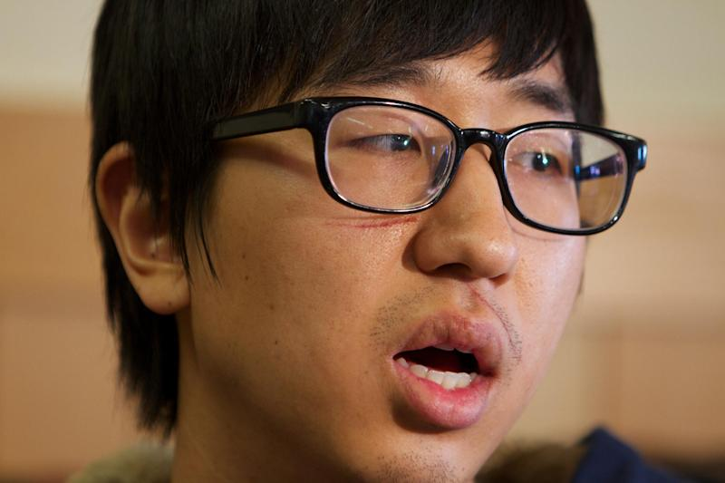 Jaemin Seo, 23, a Korean student from Vancouver, B.C., speaks Monday Dec. 31, 2012, in Pendleton, Ore., about waking up to people screaming and then being thrown from a bus that crashed in rural Eastern Oregon, Sunday. The crash killed nine and sent multiple people, including Seo, to hospitals. He was injured in his arm and leg. (AP Photo/The Oregonian, Randy L. Rasmussen)