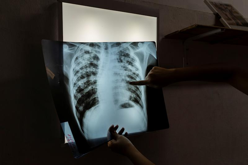 """Mariela, an infectious disease specialist intern, analyses an X-ray of 24-year-old patient Jorge, who is currently undergoing treatment for tuberculosis, in Buenos Aires, Argentina, Jan. 29, 2019. Cases of the """"white death"""" illness, closely linked to poverty, malnutrition and poor housing, have been on the rise since the turn of the decade as Latin America's third largest economy has grappled with repeat recessions and inflation. (Photo: Magali Druscovich/Reuters)"""