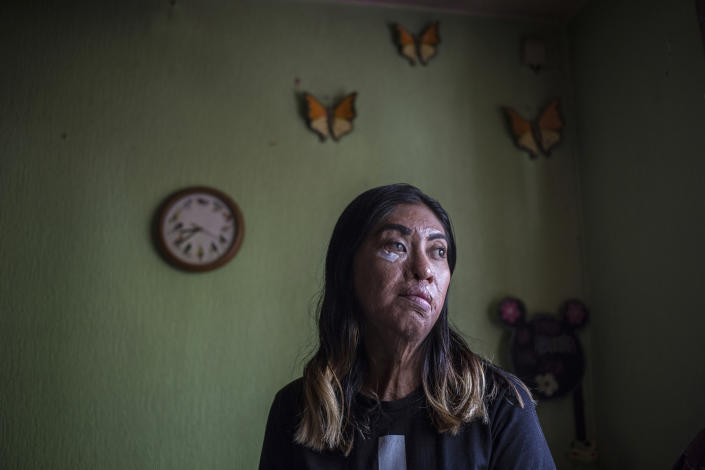 Esmeralda Millan, who survived an acid attack by her ex-partner three years ago when she was 23, poses for a portrait at her grandmother's home in the state of Puebla, Mexico, Tuesday, June 22, 2021. Millan's attacker was arrested and jailed on charges of attempted femicide the same year of the attack, which has forced her to have 43 operations to regain some mobility, and she awaits another on her eye. (AP Photo/Ginnette Riquelme)
