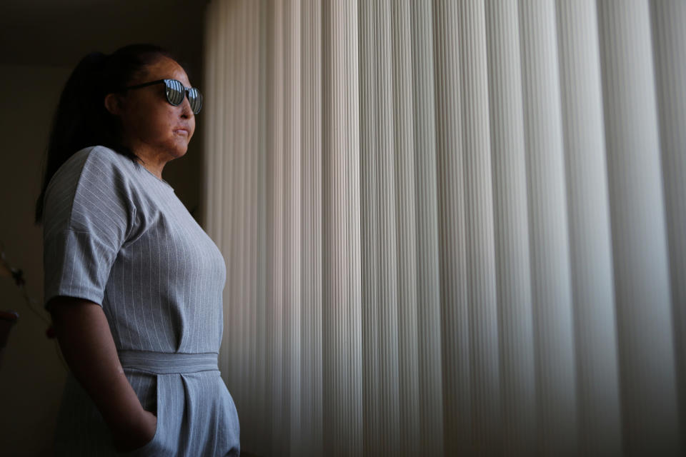 """Carmen Sanchez, who survived an acid attack by her ex-partner seven years ago when she was 30, poses for a portrait in Mexico, Sunday, May 30, 2021. Sanchez has undergone 61 surgeries and must protect her skin and right eye from the sun. When Sanchez filed a complaint against her attacker the year she was attacked in 2014, charges of """"serious injuries"""" were not enough to arrest him. But in 2021, an investigation was reopened as an attempted femicide case, for which he was then arrested, and she is waiting to know if he will be formally accused. (AP Photo/Ginnette Riquelme)"""