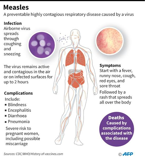 Factfile on measles