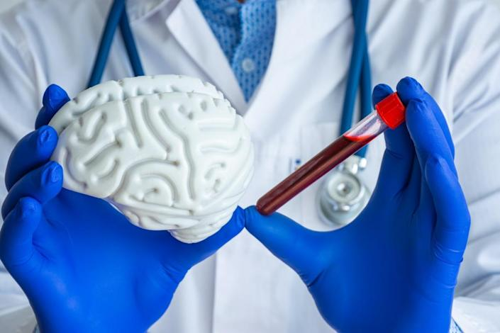 laboratory technician holds in one hand laboratory test tube with blood, in other brain model