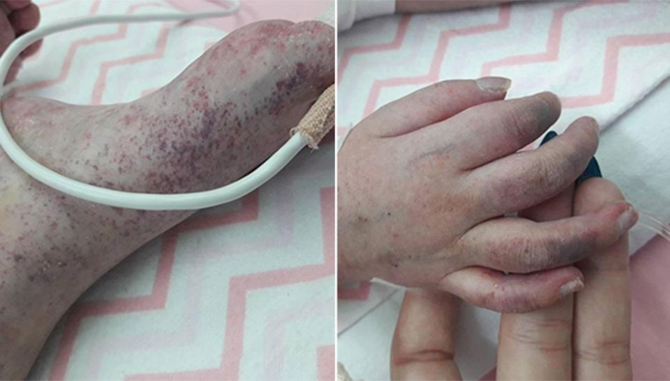 Nadja infected with the measles. Source: Facebook/ Dragana Petrovic