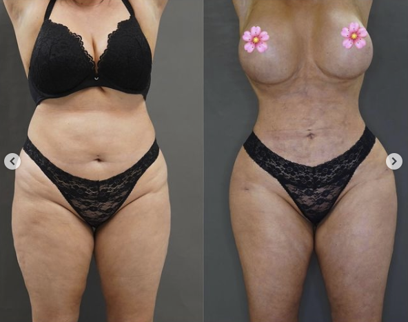 Sarah had liposuction in her upper body and some of that was then transferred to her buttocks. Photo: Instagram/Sarah Roza