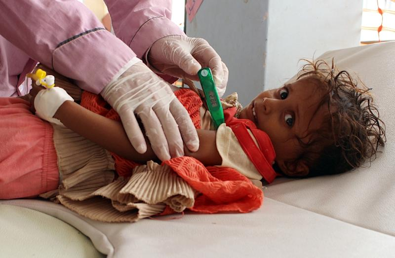 A child suspected of having cholera is checked by a doctor at a makeshift hospital operated by Doctors Without Borders (MSF) in the northern district of Abs in war-battered Yemen's Hajjah province, on July 16, 2017