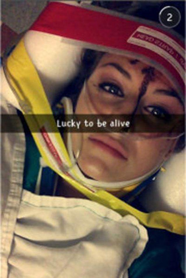 A woman in Georgia, US, posted this selfie to Snapchat after a crash that left another driver with permanent brain damage. Picture: Snapchat